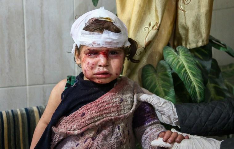A injured child sits in a clinic in Kafr Batna, in Eastern Ghouta on Feb. 6.