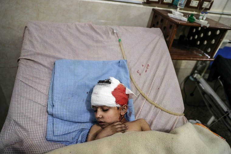 An injured child receives treatment at a hospital in Douma on Feb. 7.
