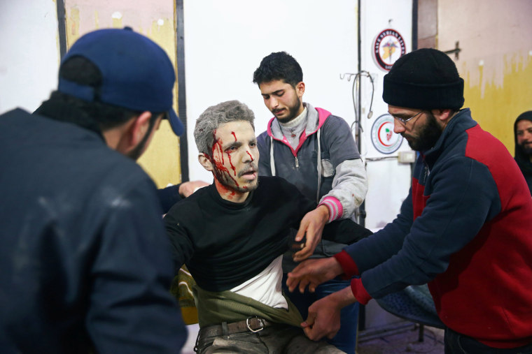 An injured man appears in shock while being treated in Douma on Feb. 20.