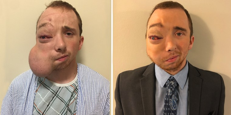 Lucas McCulley, who had a face tumor removed.