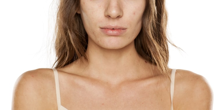 Orange peel skin: How to treat it, avoid it