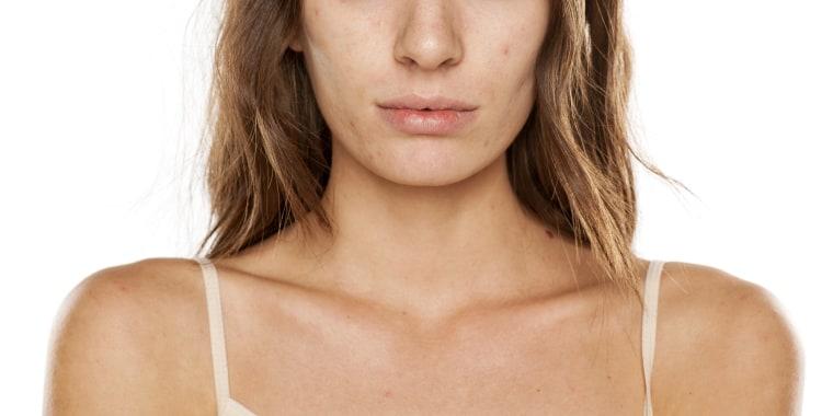 "Here's why \""orange peel skin\"" has become a big term in skin care."