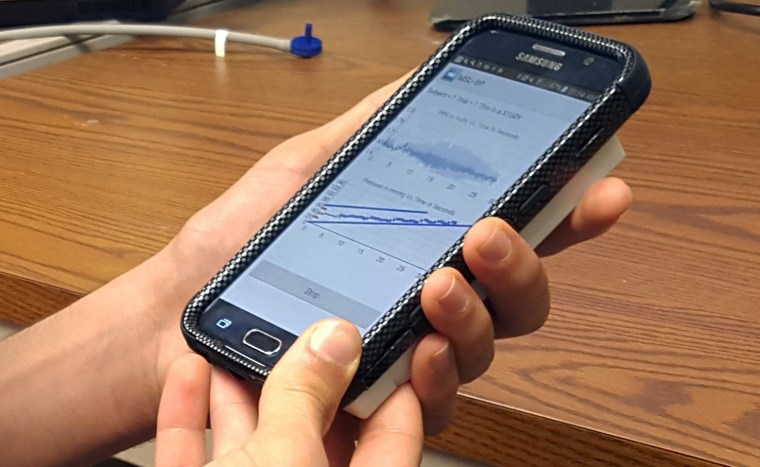 Image: Smartphone based device for real-time monitoring of blood pressure