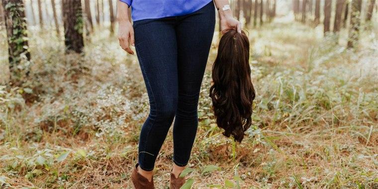 Women with alopecia