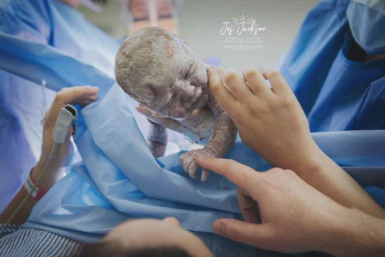 """""""It is always a huge honor to be allowed into such a sacred space,"""" Jes Jackson said  about photographing this birth. """"C-section is birth and deserves to be documented too by a professional."""""""