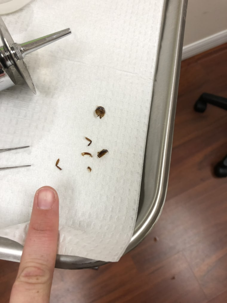 Katie Holley woke up with a cockroach stuck in her ear