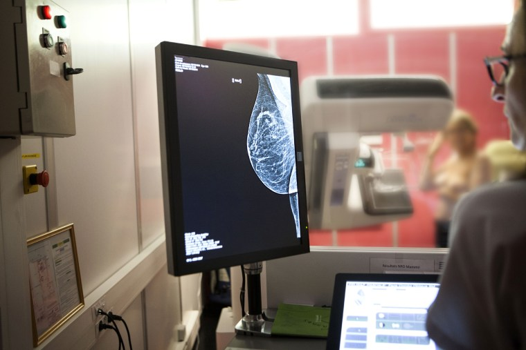 Image: Radiology service, a digital mammogram.