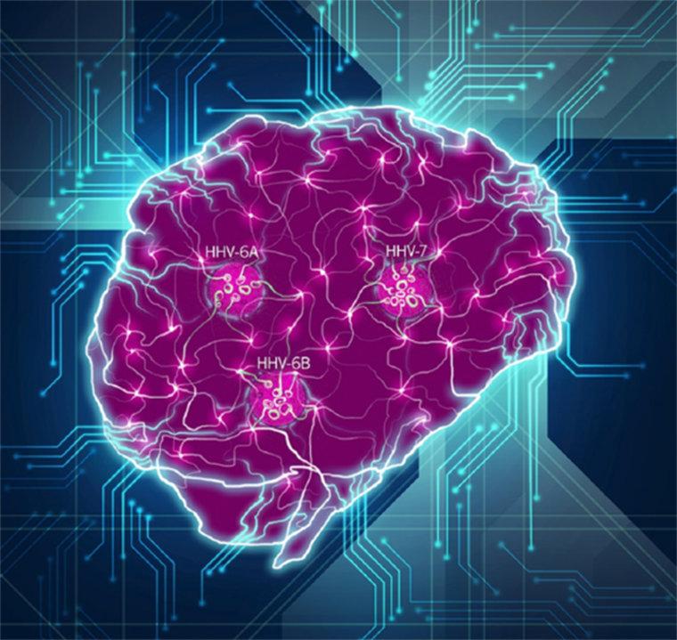 Viral Infection Link To Sjogren S Syndrome: Childhood Herpesvirus HHV Linked With Alzheimer's Decades