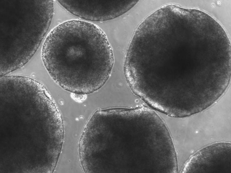 Image: Human mini brains and round, spherical organoids