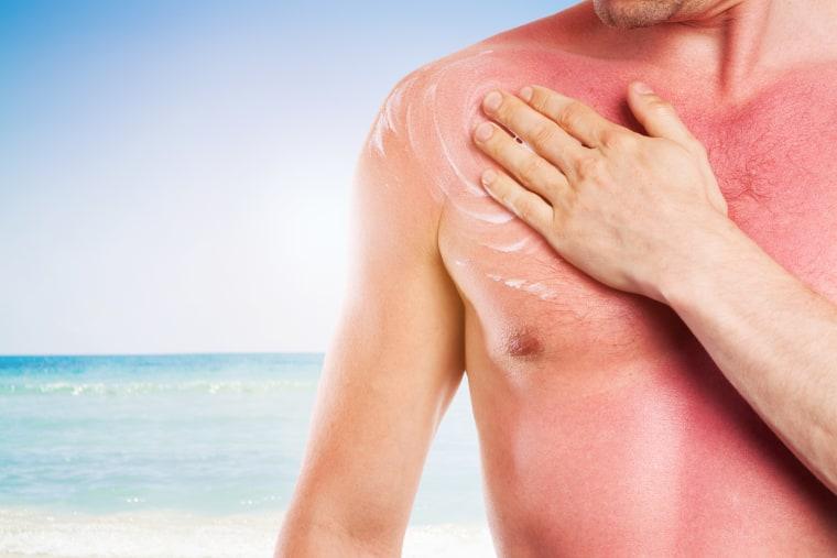Can you get a suntan if wear sunscreen