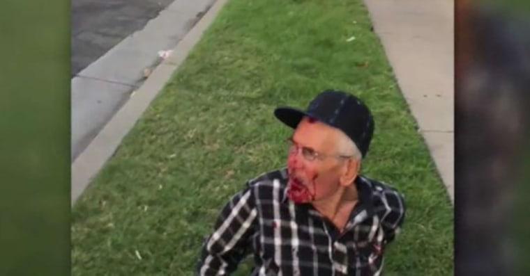 Image: LA attack