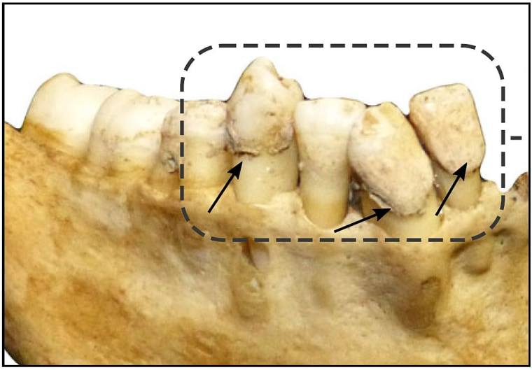 Image: Example of dental calculus analyzed in this study