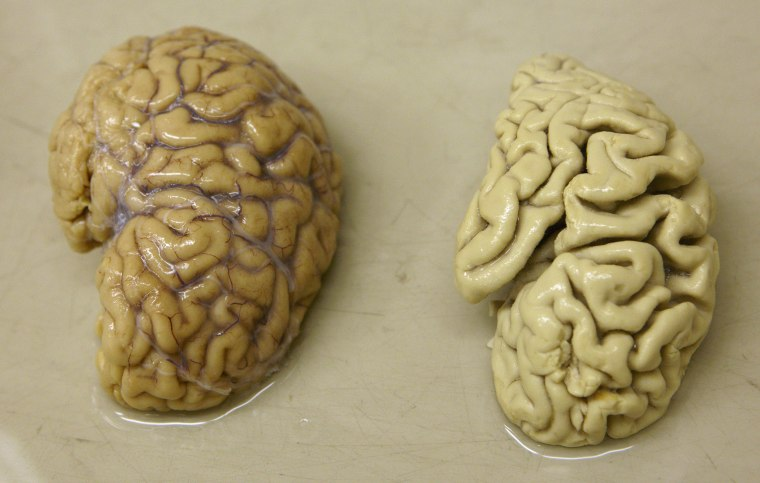 Image: Half a healthy brain is pictured next to half a brain of a person suffering from Alzheimer disease Belle Idee University Hospital in Chene-Bourg