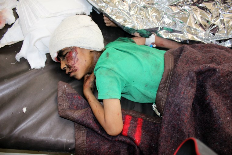 Image: A wounded Yemeni child lies on a bed receiving treatment at a hospital