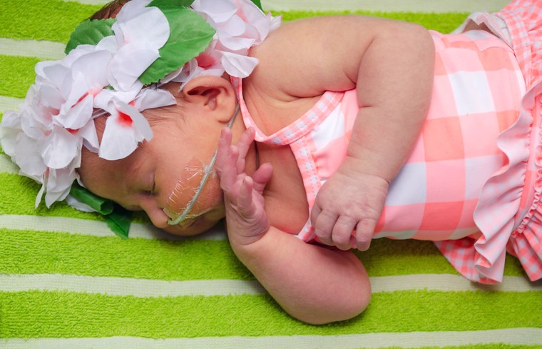 Seeing their babies in swimsuits decked out for a day at the beach gave parents with children in the Special Care Unit such joy. It felt like the break from the stresses of the hospital.