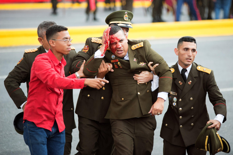 Image: An official bleeds following an incident during a speech by Venezuelan President Nicolas Maduro