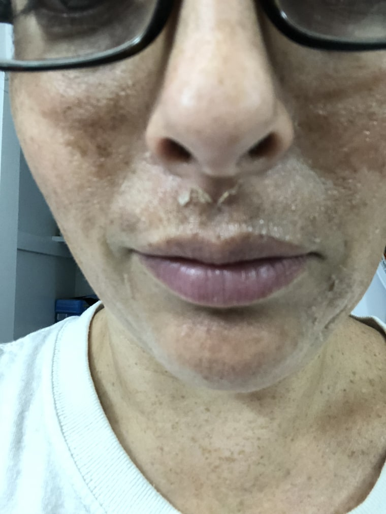 What is melasma? How to treat skin discoloration