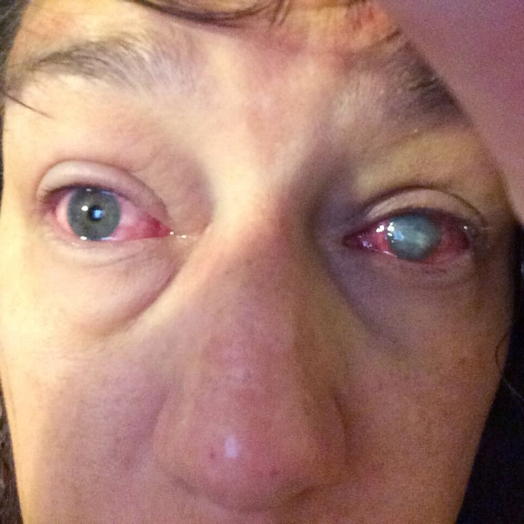 Stacey Peoples, who almost lost her vision to a parasite after swimming in contact lenses.