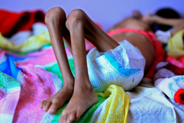 A Yemeni child suffering from malnutrition lies on a bed at a treatment center in a hospital in the capital Sanaa on Oct. 6, 2018