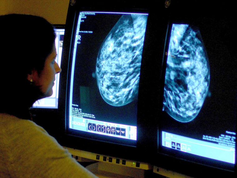 Image: A consultant analyzing a mammogram