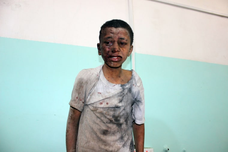 Image: A Yemeni child awaits treatment at a hospital after he was wounded in an airstrike by the Saudi-led coaltion
