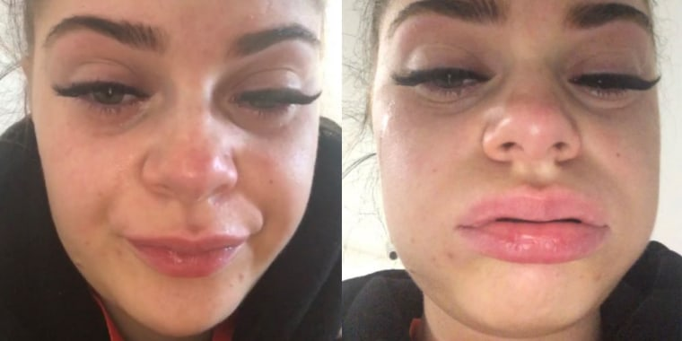 After getting eyelash extensions, Megan Rixson's eyes were swollen and red and her vision was blurred.