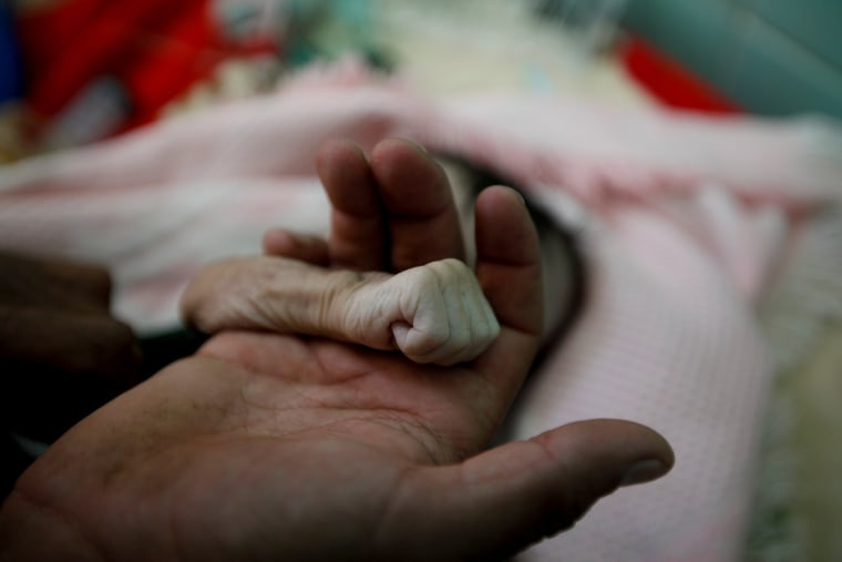 Image: A Picture and its Story: Yemeni father mourns baby girl who died of starvation