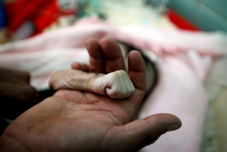 Image: Saleh Hassan al-Faqeh holds the hand of his four-month-old daughter, Hajar, who died at the malnutrition ward of al-Sabeen hospital in Sanaa