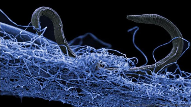 This unidentified nematode from the Kopanang gold mine in South Africa lives 1.4 kilometers below the surface.