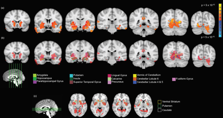 Image: Various figures show grey matter volume differences after cannabis use in adolescents.