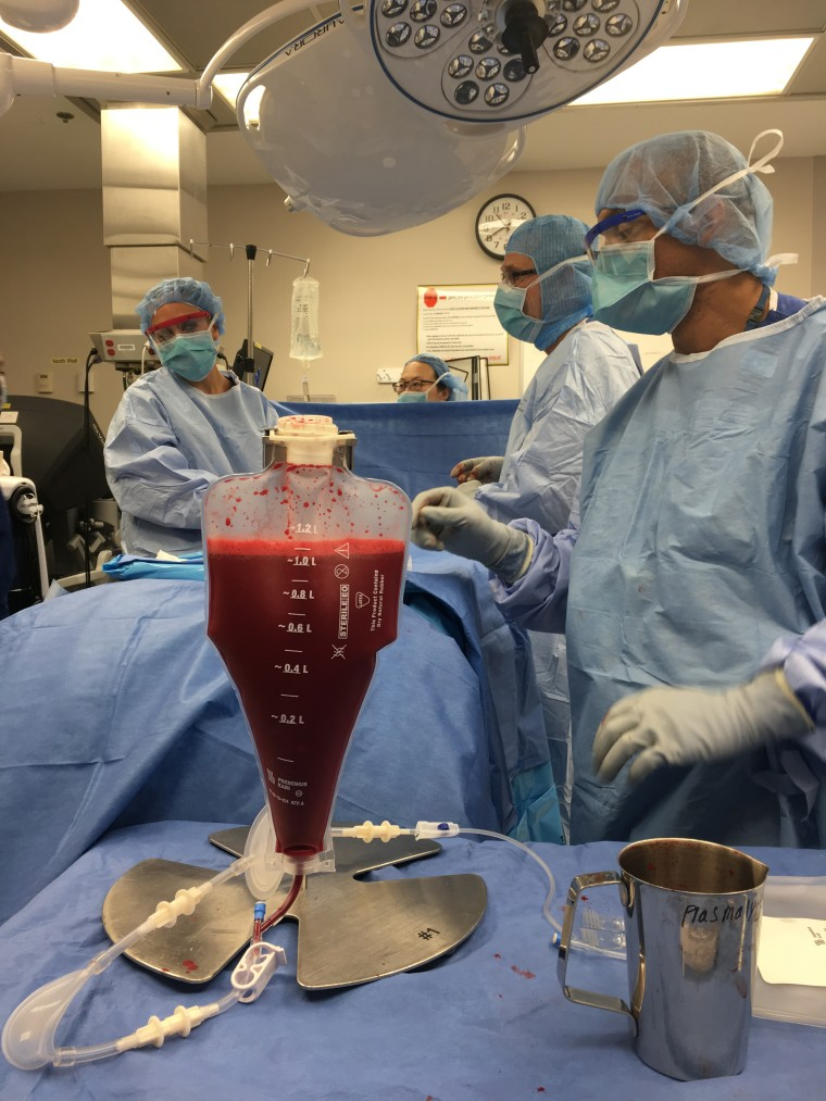 Partial-match transplants ease the grinding pain of sickle