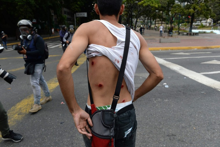Image: A wounded protester shows his back as riot police clash with opposition demonstrators during a protest against the government of President Nicolas Maduro
