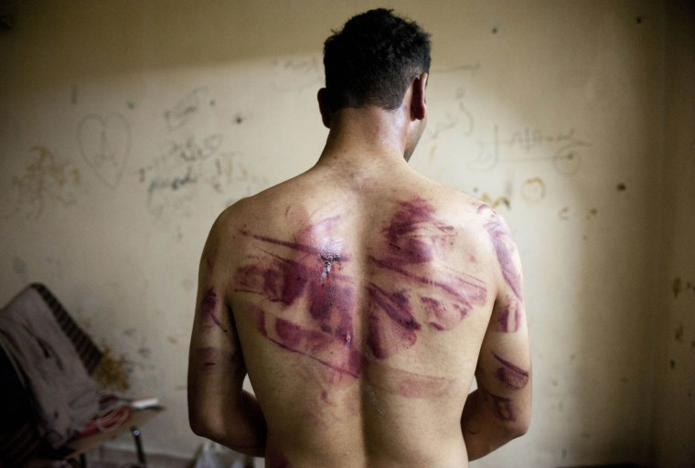 Image: A Syrian man shows marks of torture on his back, after he was released from regime forces, in the Bustan Pasha neighbourhood of Syria's northern city of Alepp