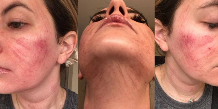 """Heather Muir said she felt pain, stinging and a """"pulsing heartbeat sensation"""" on her skin during the appointment."""