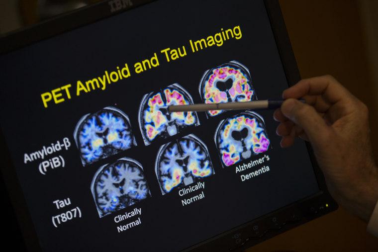 Image: Alzheimer's disease
