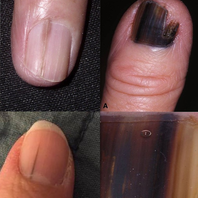 What does nail melanoma look like? Skin cancer can hide as line on nail