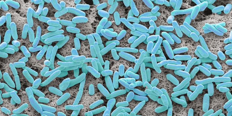 E coli, SEM