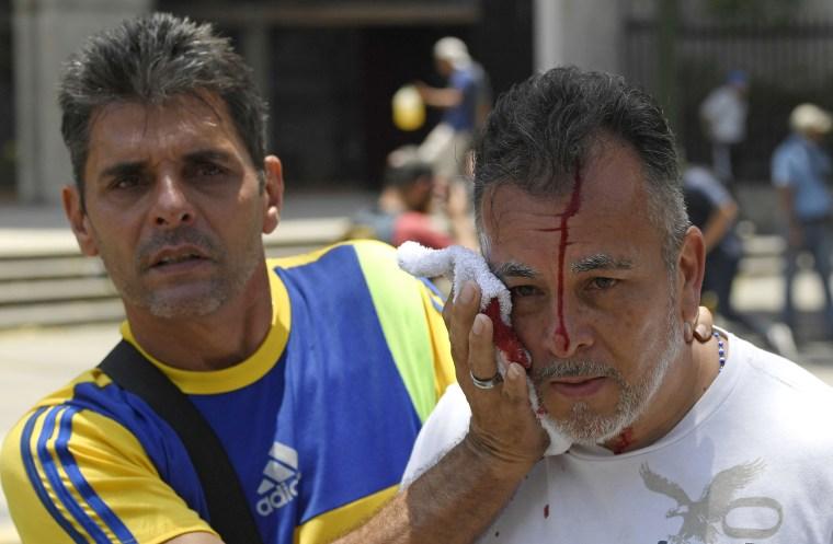 Image: VENEZUELA-CRISIS-CLASHES