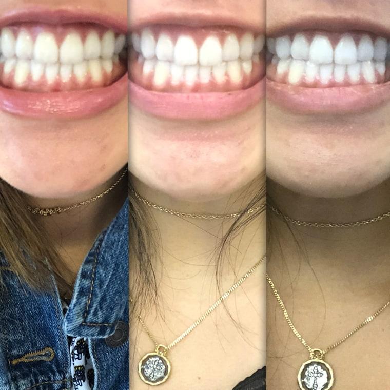 Do Led Teeth Whitening Kits Work I Tried Teeth Whitening At Home