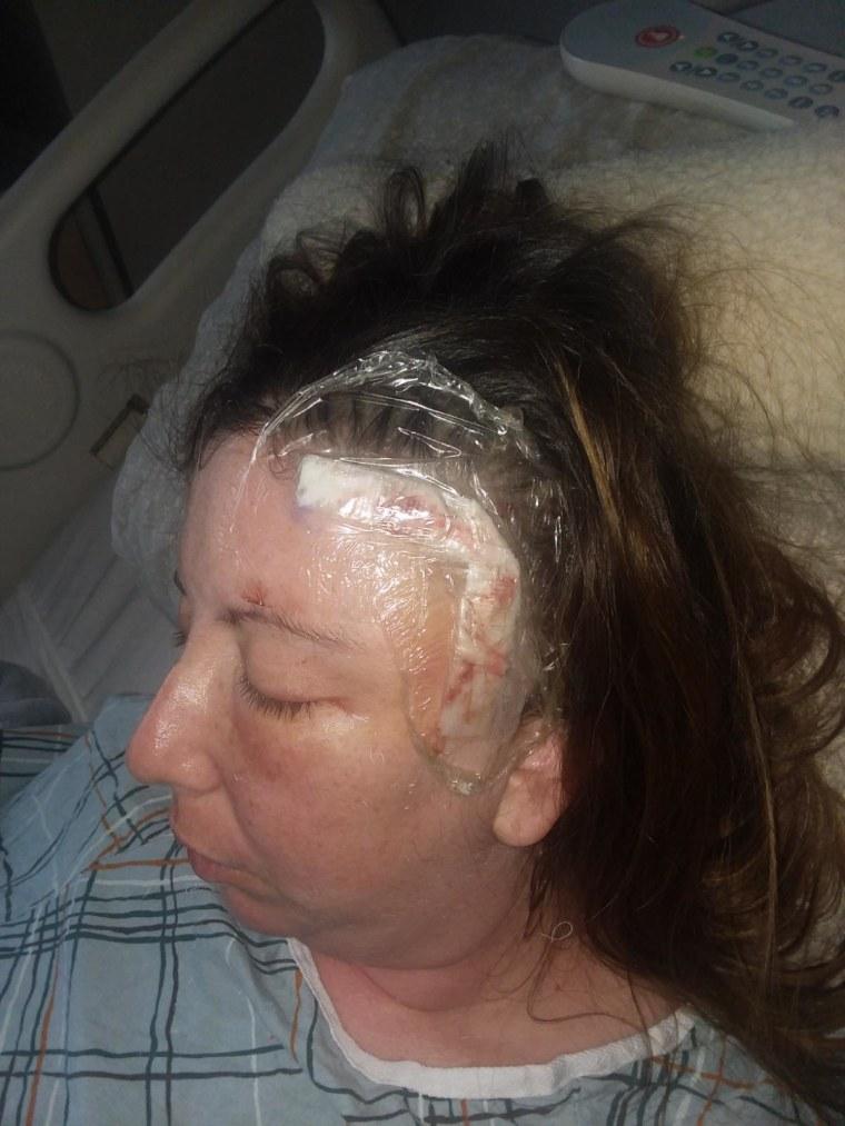 Rachel Palma's brain surgery took place last fall.
