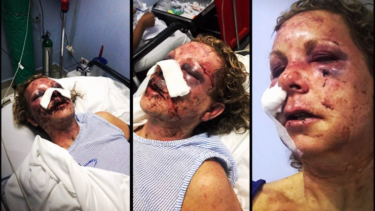 Tammy Lawrence-Daley attacked at Majestic Elegance Punta Cana resort.
