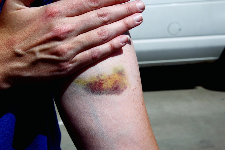 Image: Midsection Of Woman With Bruise On Arm