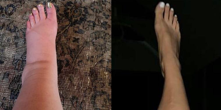 Jessica Simpson shares photo of post-baby leg transformation