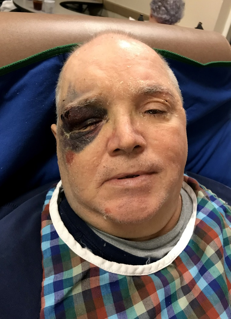 Image: Donny Owens, a resident at a Skyline nursing home in Hazen, Arkansas, fell and bruised his face.  According to his sister Karen Coats, Owens called for staff for 45 minutes before they came to help him.