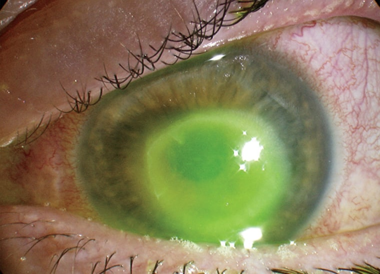 Woman nearly loses sight in one eye after wearing contacts in shower and pool