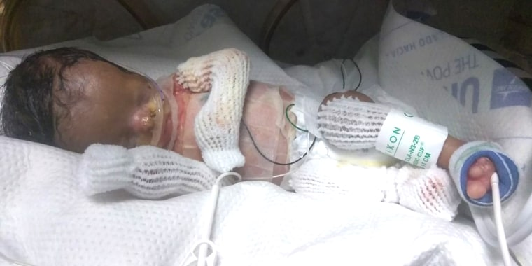 Ja'bari Gray's son born without skin in some places