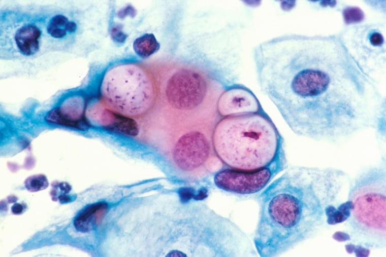 Image: A human pap smear showing chlamydia in the vacuoles.