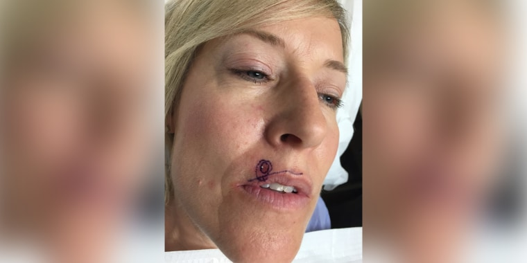 About 700,000 new cases of squamous cell carcinoma are diagnosed in the U.S. each year. Traci French's case was among them.