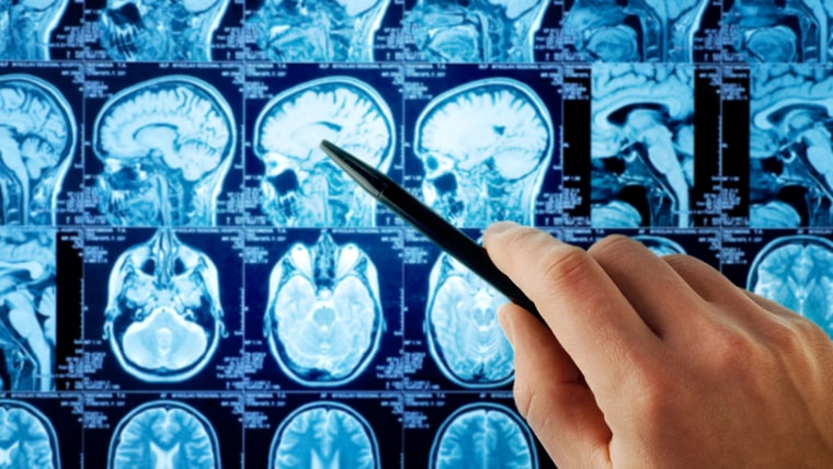 What causes brain tumors? Brain tumor treatment, prognosis and more