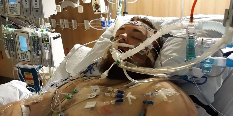 Justin Wilson, 25, vaped for about a year and then suddenly collapsed, unable to breathe, on Sept. 1. He had to spend a week in a hospital in Portland, Oregon.